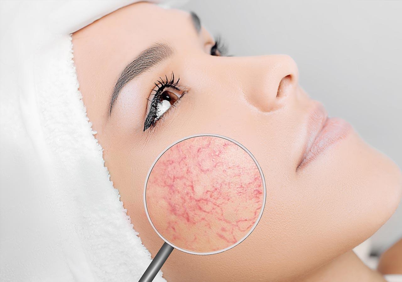Couperose-huidproblemen-huidinstituut-doetinchem