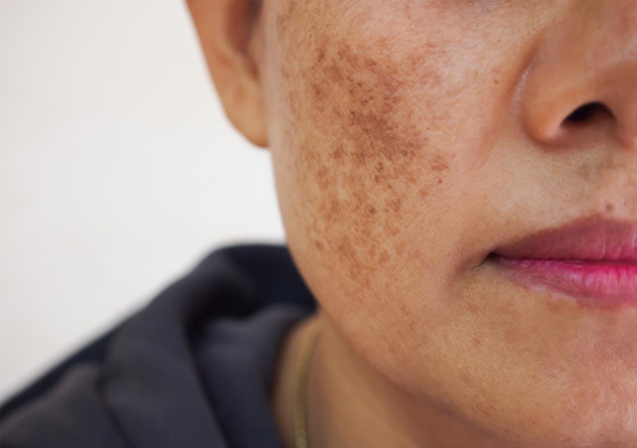 Pigmentvlekken-huidproblemen-huidinstituut-doetinchem