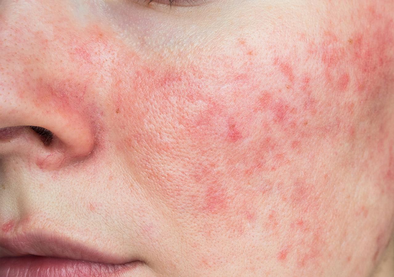 Acne-rosacea-BABOR-Doetinchem-blok