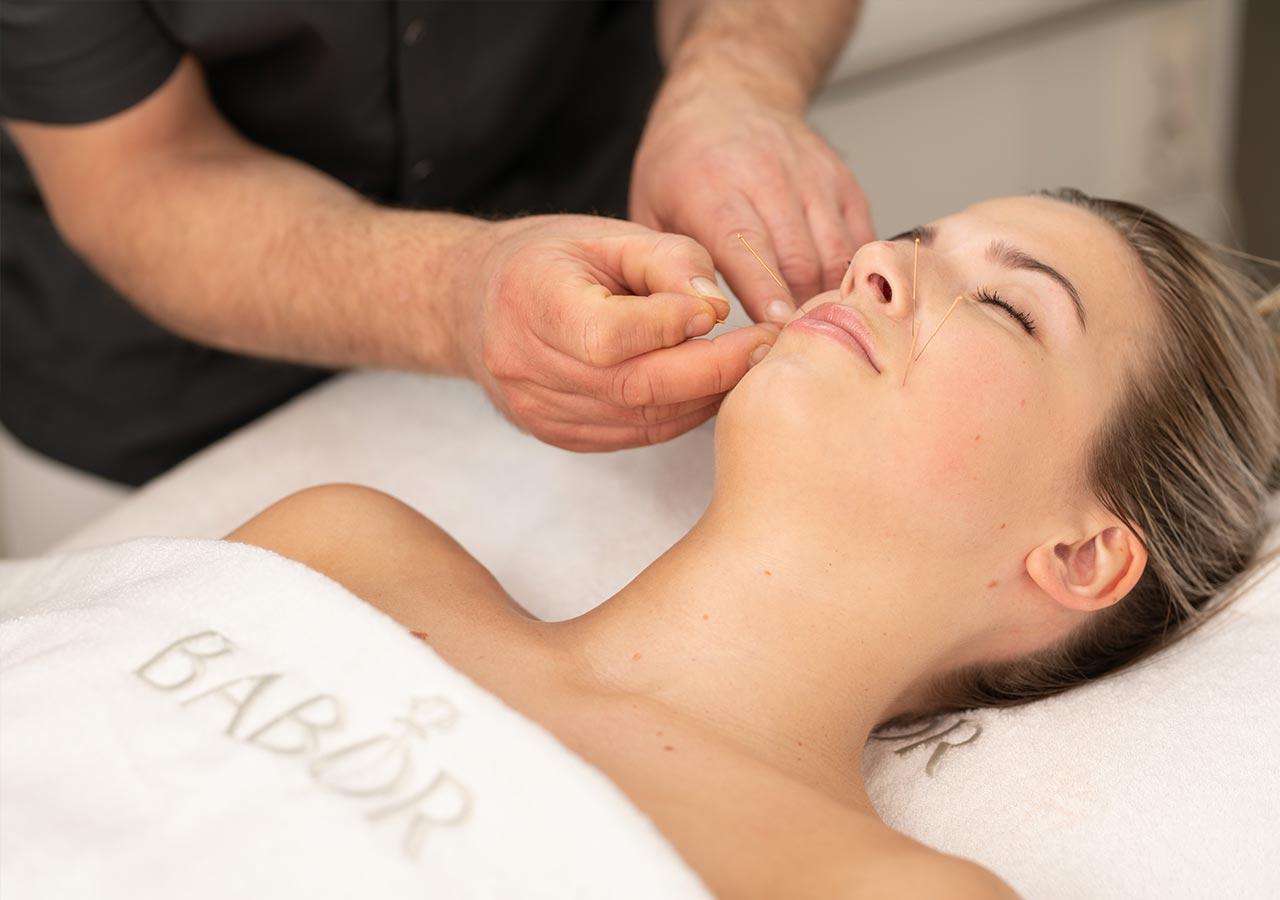 Behandelingen-Cosmetische-Acupunctuur-blok