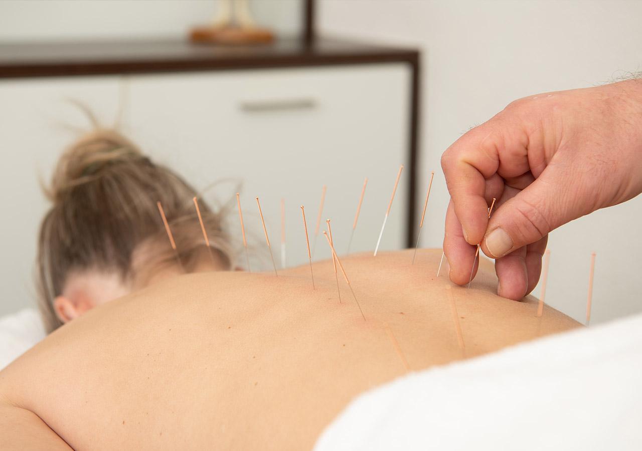Home-acupunctuur